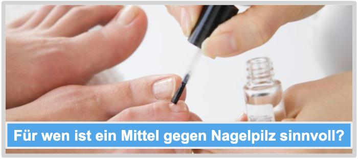 Für wen ist ein Mittel gegen Nagelpilz sinnvoll